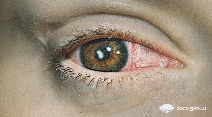 keratit-pri-ispolzovanii-prosrochennyh-kontaktnyh-linz.jpg