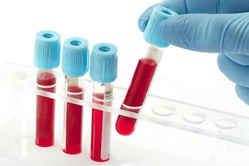 Кровь на вич срок годности анализа